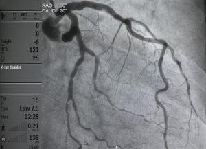 Coronary-Angiogram-300x217